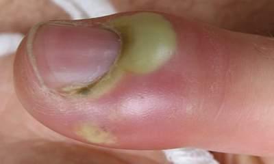 paronychia-4.jpg